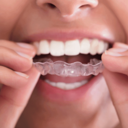 Ästhetische Frontzahnkorrektur Zahnspange