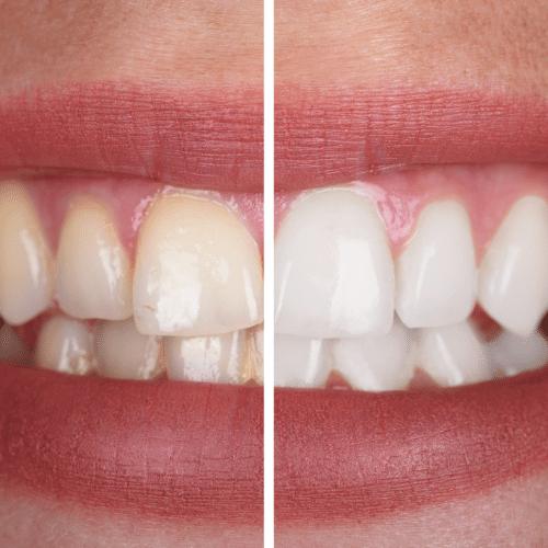 Zahnbleaching Vorher nachher Vergleich